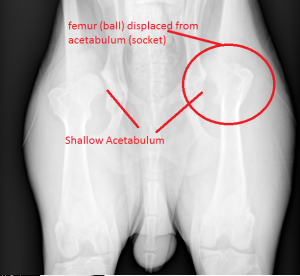 DISLOCATED HIP_2
